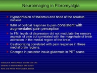 fibromyalgia-slide-cast066-22-638
